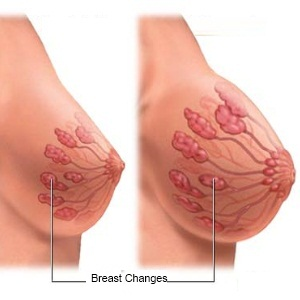 breast changes in early pregnancy