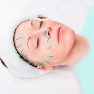 لیفتینگ پوست صورت با استفاده از طب سوزنی