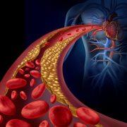 علائم ، علل و درمان تصلب شرایین یا آترواسکلروز (Atherosclerosis)
