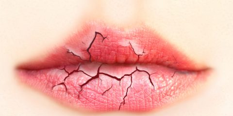 خشکی دهان و علایم و دلایل آن + درمان