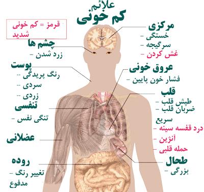 anemia. 1