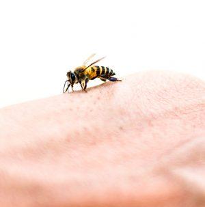 درمان نیش زنبور