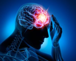 صرع یا اپی لپسی ، علل ، علائم ، تشخیص و درمان