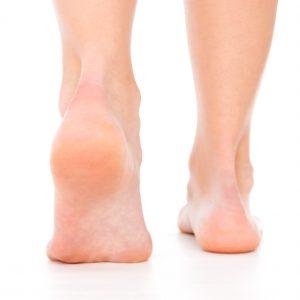 درمان تاول پا