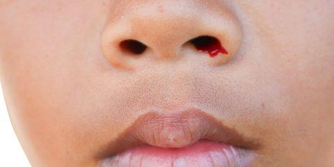اختلال خونریزی دهنده هموفیلی و علائم آن