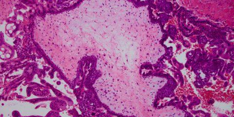 molar-pregnancy 1