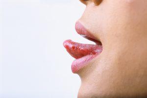 التهاب زبان و علائم ، علل و درمان